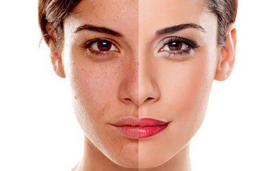 Comment se déroule un peeling contre l'acné ?